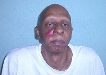 Cuba independent journalist Guillermo Farinas after being beaten up by the Cuban police
