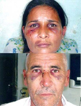 Orestes Torres and Nacy Gonzalez beaten by the Cuban police